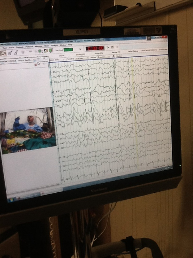 The monitor the EEG techs are watching and marking 24 hrs a day